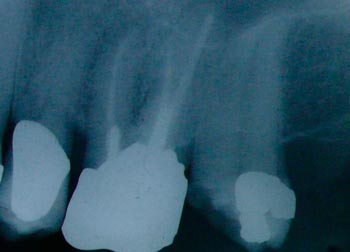 alternatives to root canal - molar root filling x-ray