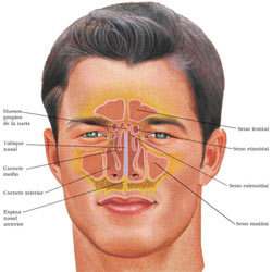 Sinusitis symptoms diagram