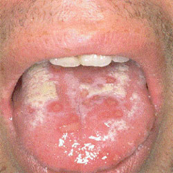 tongue herpes photo