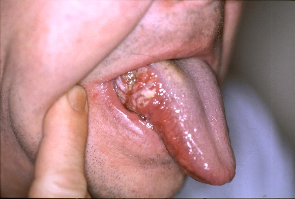 tongue cancer pictures 9