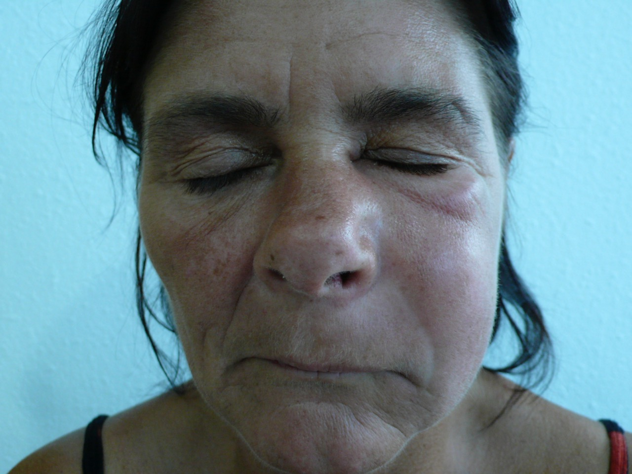 Jaw Bone Infection - face swelling