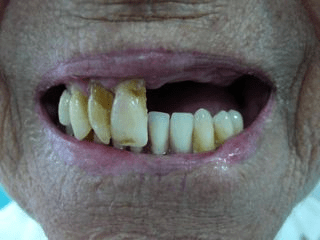 Woman with missing front teeth after an accident