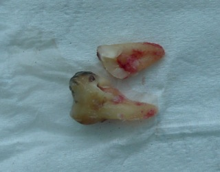 cracked tooth root photos