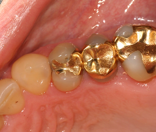 Tooth filling material
