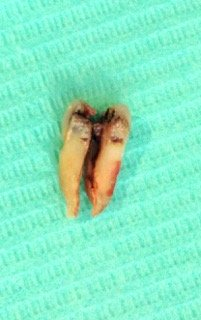 cracked tooth root photo