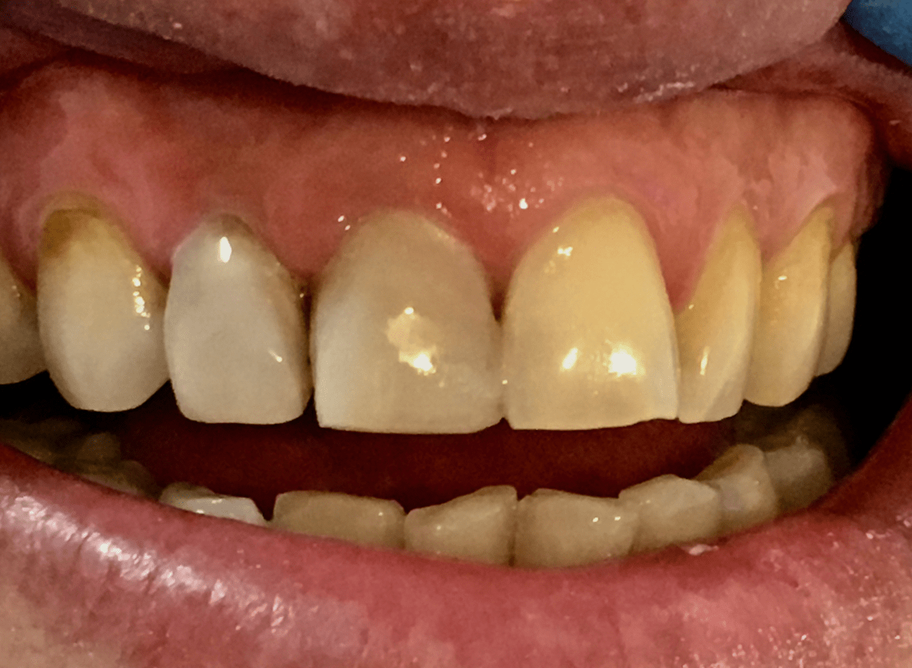 Dark teeth covered over with tooth-colored filling material