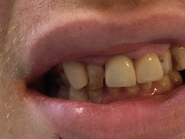 A tooth that looks bad is actually only crooked