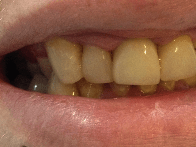 Crooked tooth improved with composite bonding