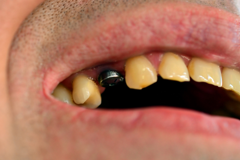 dental implant infection