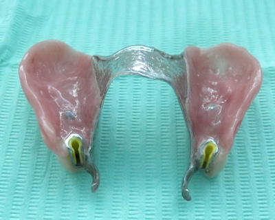 An upper partial denture with metal framework, and precision attachments