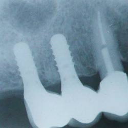 X ray of dental implants healing in the jaw bone