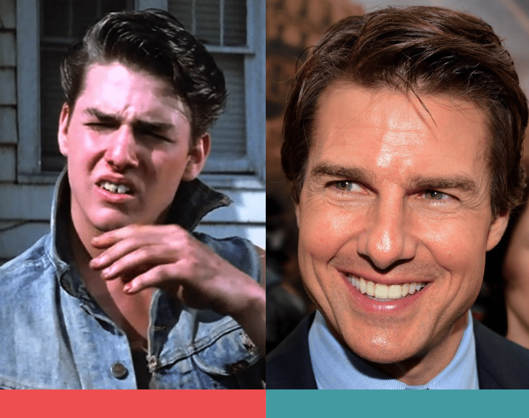 Tom Cruise' bad teeth before-and-after