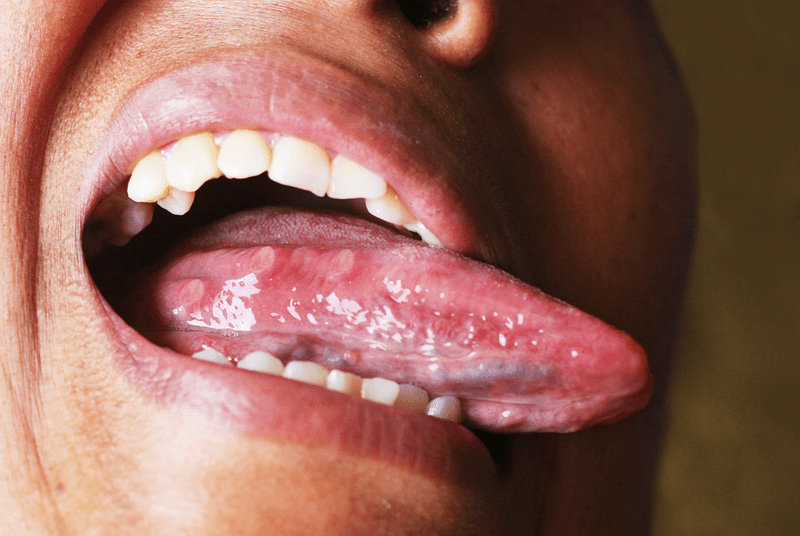 Ulcers on the side of a tongue - Tongue ulcers